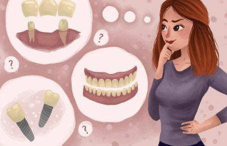 جای خالی دندان