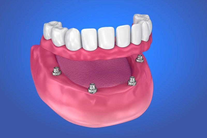دندان مصنوعی ثابت