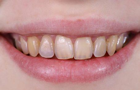 تحلیل مینای دندان