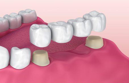 بریج دندان - پل دندان