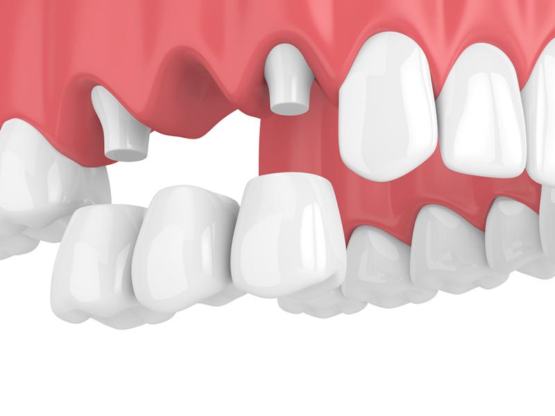 پل دندان - بریج - تاج دندن