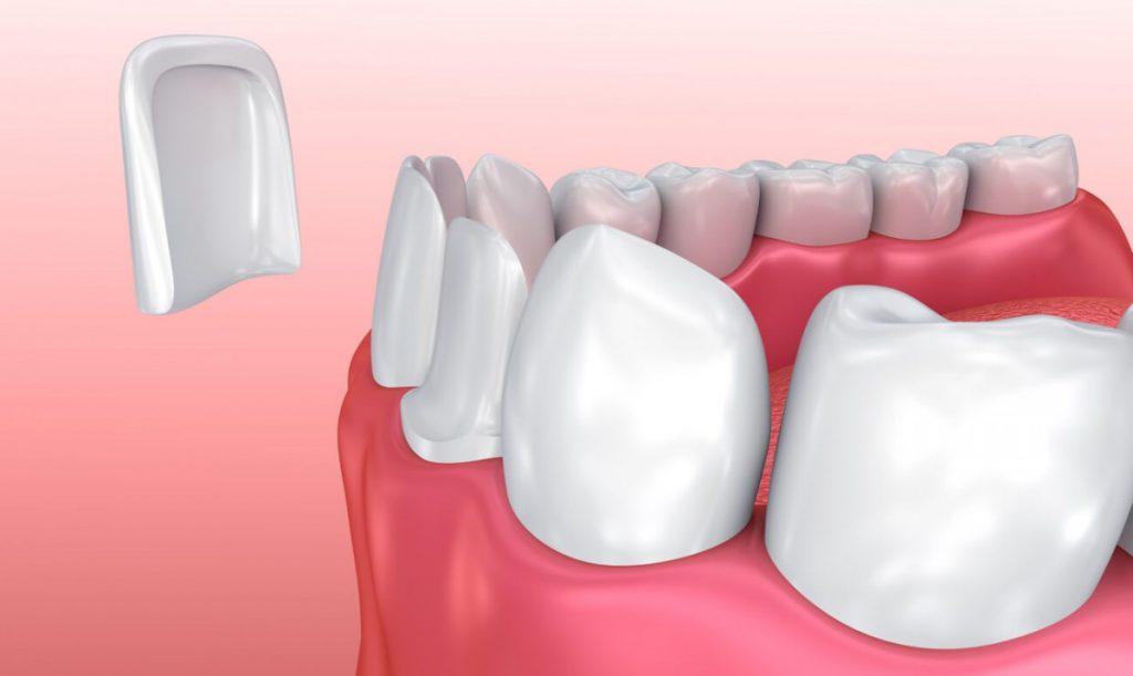 نصب لمینت دندان