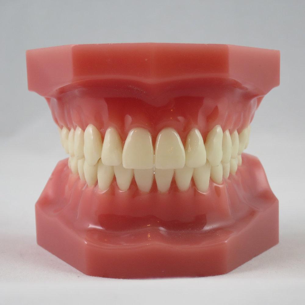 دندان ایده آل