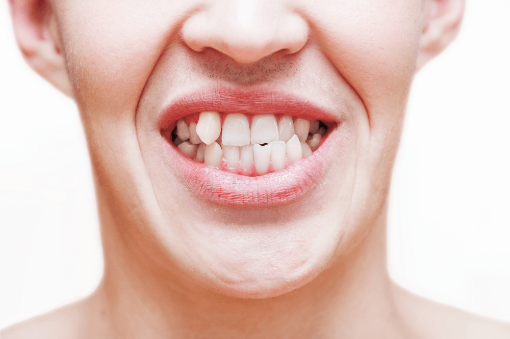 کج شدن دندان
