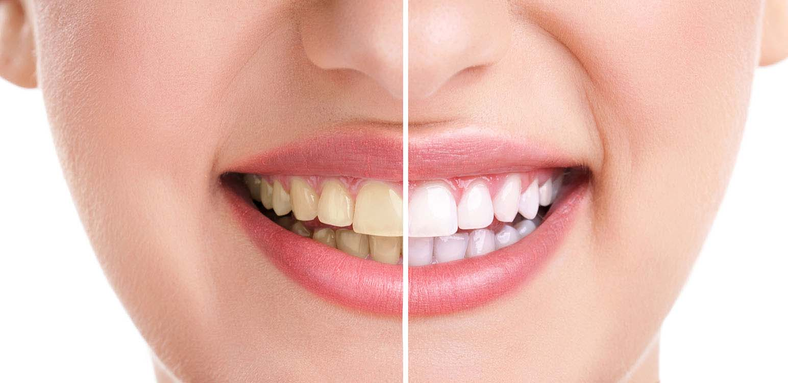 بلیچینگ دندان - سفید کردن دندان