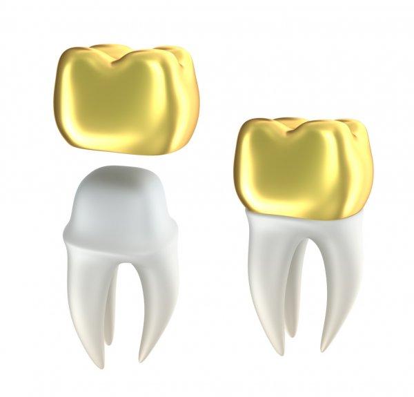 روکش دندان طلا