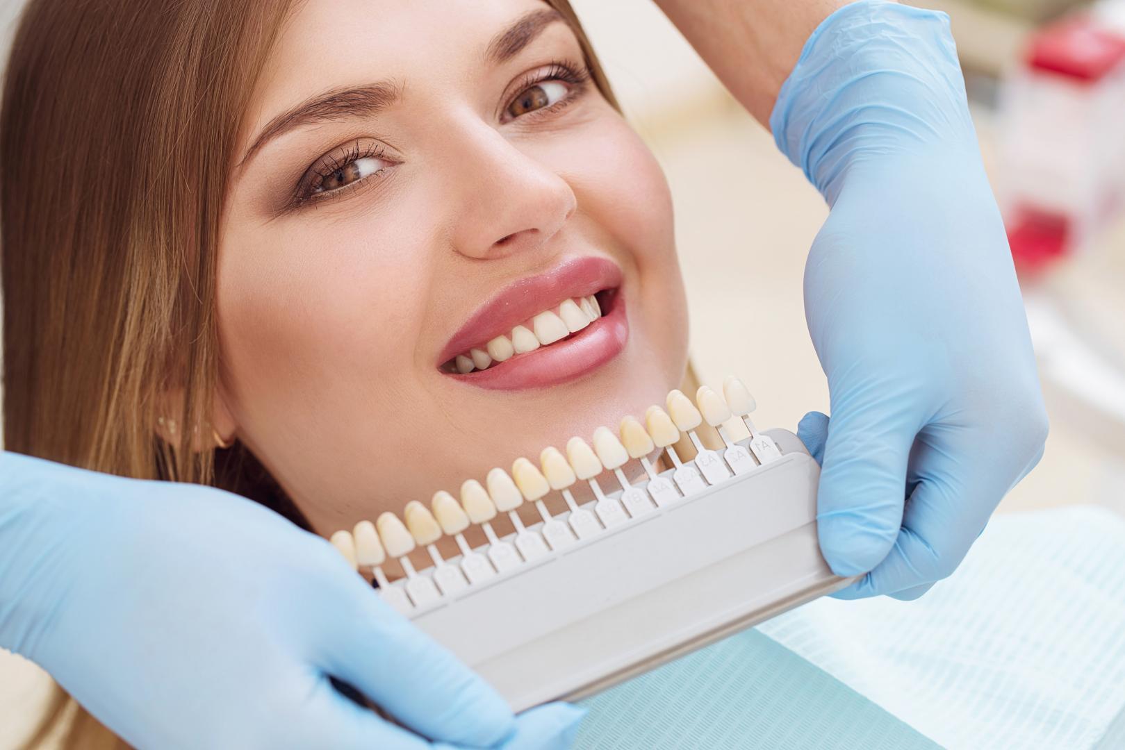 قیمت لمینت دندان