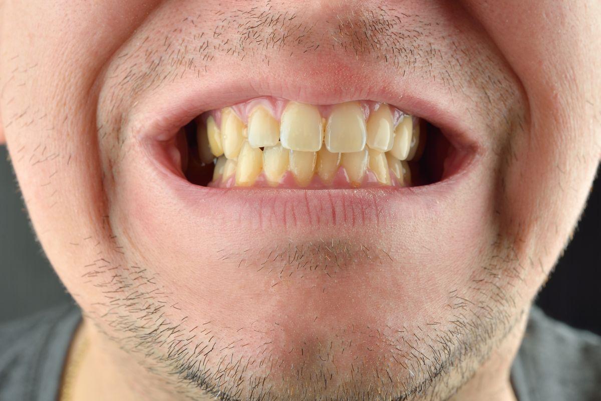 تغییر رنگ دندان ها