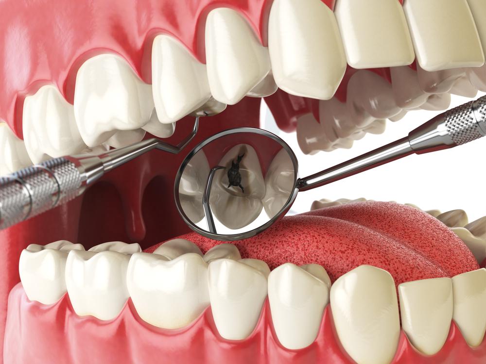 علل عفونت دندان