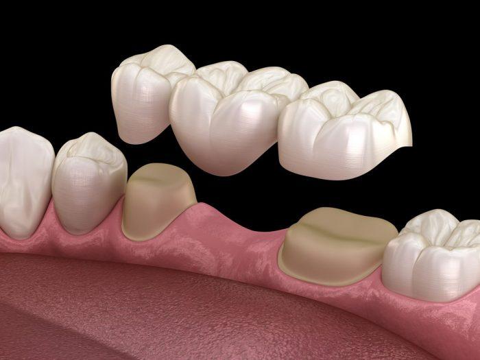 بریج یا پل دندان