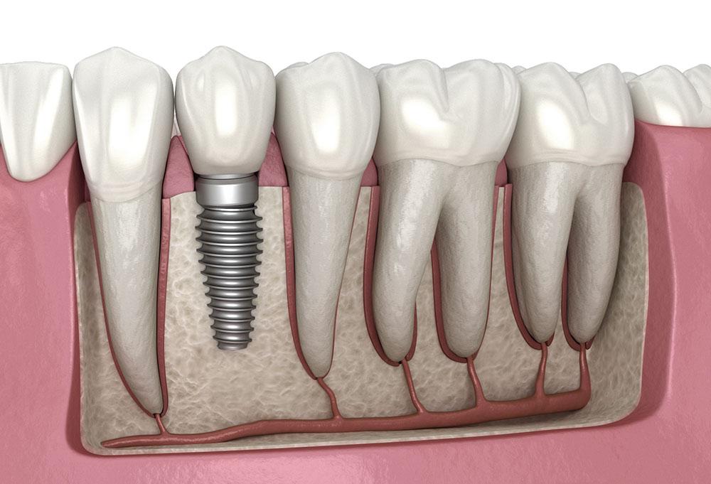 بررسی هزینه ایمپلنت دندان در سال 1400