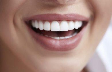 تصویر یک خانم که درمان ونیر کامپوزیت انجام داده و در حال خندیدن است