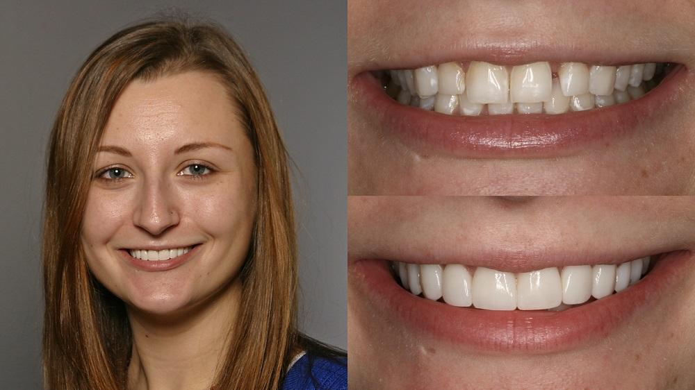 تصویر قبل و بعد از درمان ونیر کامپوزیت دندان