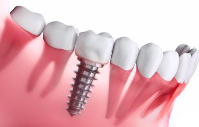 جدول هزینه ایمپلنت دندان