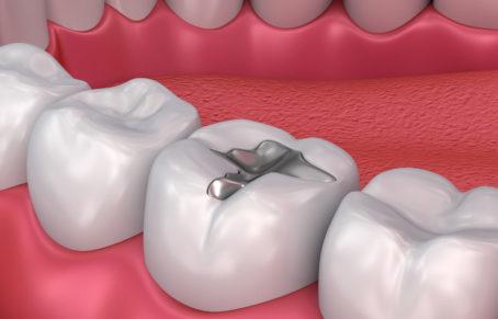هزینه پر کردن دندان در سال 1400