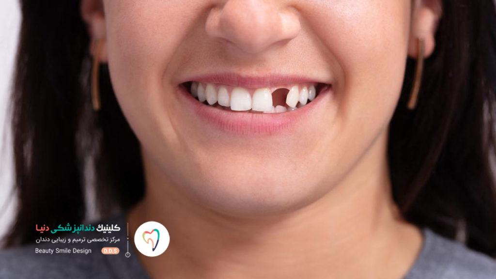 یک دختر که دندان نیشش بر اثر تروما آسیب دیده و کشیده شده است