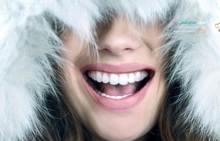 سفید کردن دندان ها با بلیچینگ - دختری که در حال لبخند زدن است