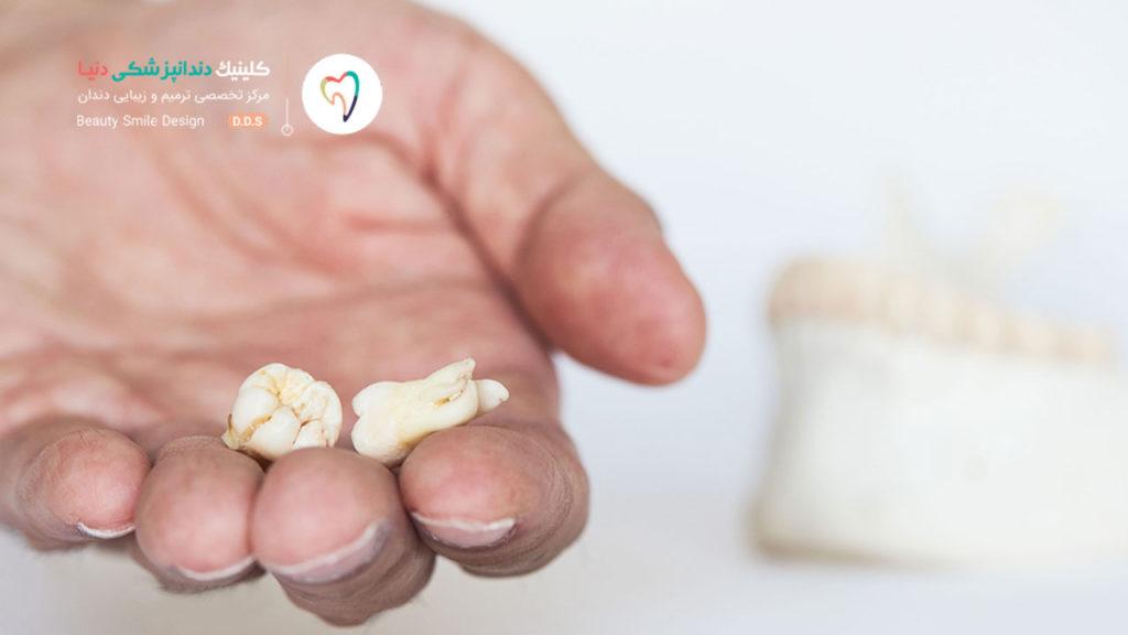 دو عدد دندان عقل کشیده شده که در کف یک دست هستند
