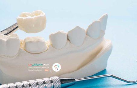 تصویر مولاژ یک روکش دندان