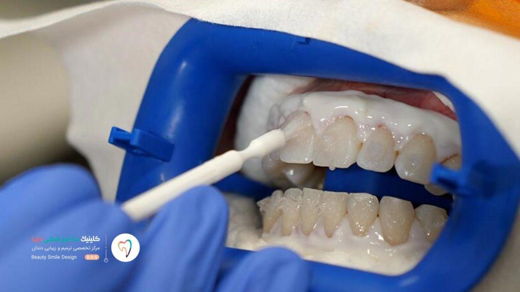 تصویری که نشان می دهد دندانپزشک در حال اتصال مواد سفید کننده به سطح دندان ها است. این اولین مرحله فرآیند بلیچینگ دندان است