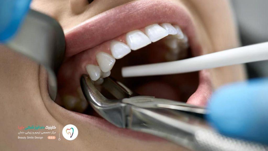 دندانپزشک در حال کشیدن دندان است