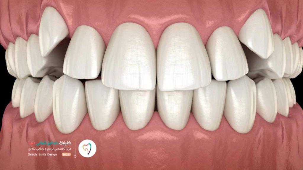 تصویر شماتیک کراودینگ و شلوغی دندان ها