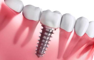 شکل ایمپلنت دندان