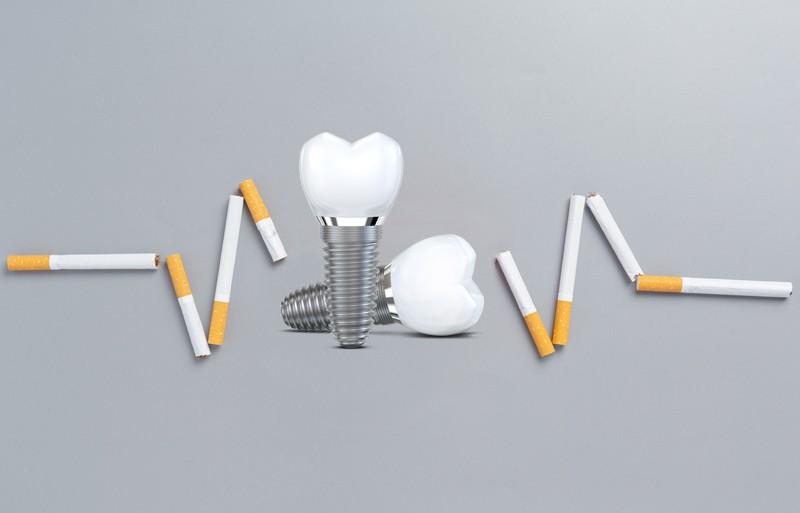 کاشت ایمپلنت برای افراد سیگاری