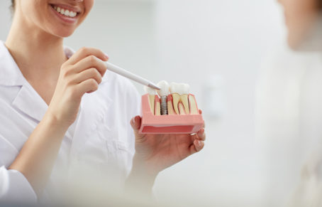 مزایا و معایب دندان